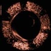 SLIT - Croncaca Nera
