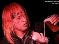 140915_thecasualties04